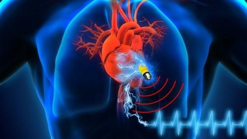 无需电池的医疗植入物使用生物体液进行充电